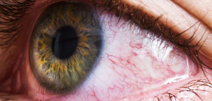 cannabis occhi rossi