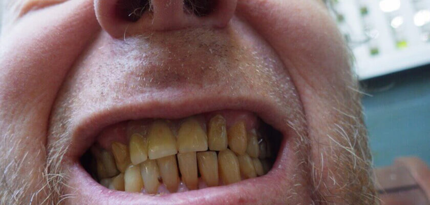 denti gialli fumo